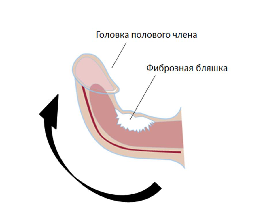Медикаментозные средства для лечения искривления пениса