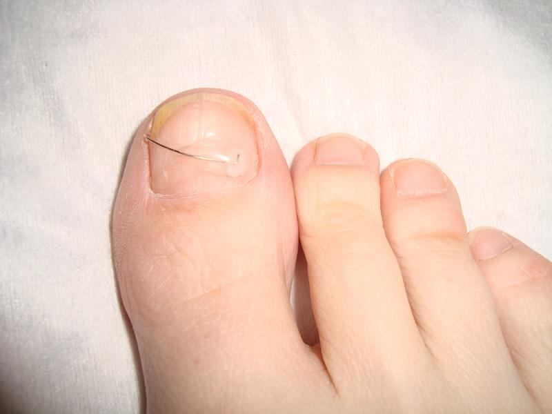После удаления ногтя на ноге фото