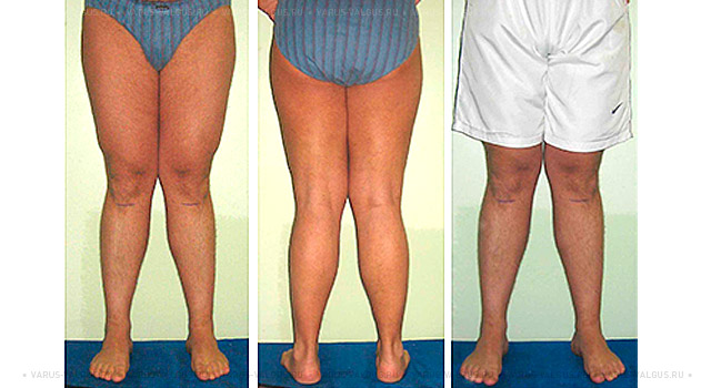 Эффективное средство против грибка ногтей на ногах народными средствами
