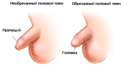 Обрезание крайней плоти у мужчин: http://surgical-center.ru/male-circumcision